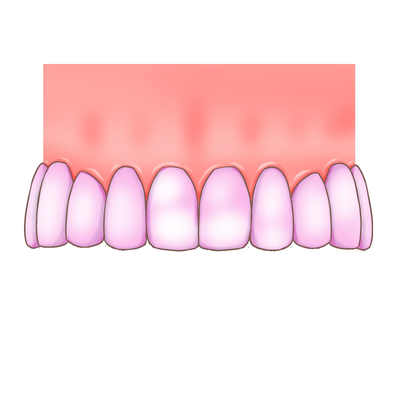 歯垢染め出し剤を使って汚れをチェックします