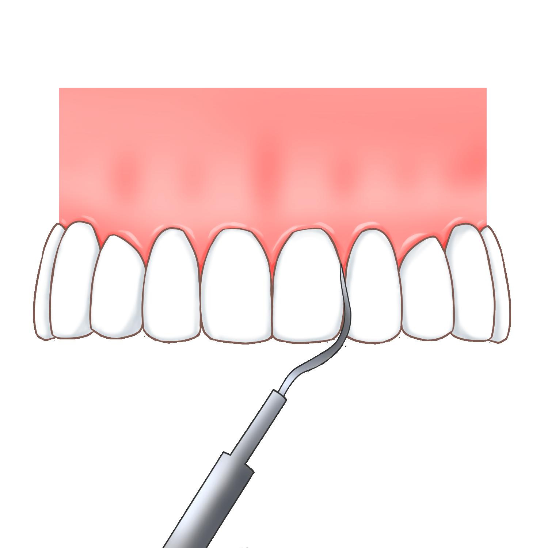 歯間や歯面をきれいにクリーニングします