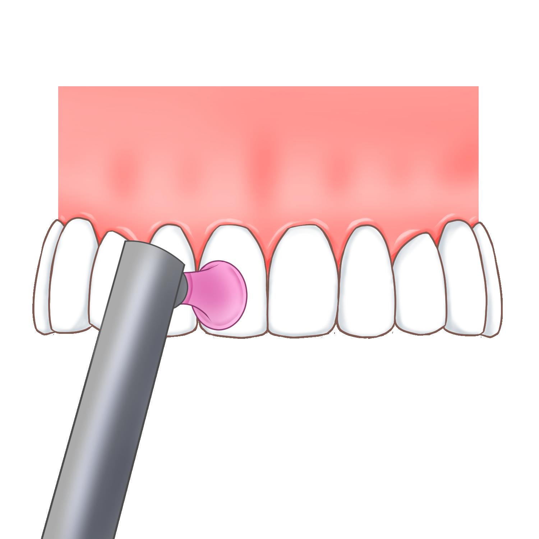 歯の表面をツルツルに仕上げ磨きします