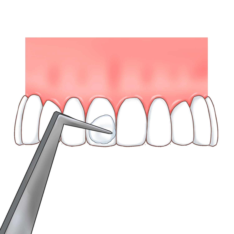 フッ素塗布を使って歯質を強化します